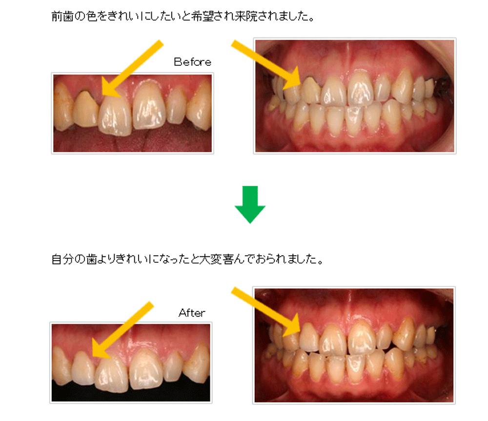 症例: 20歳代女性 前歯1本かぶせをオールセラミックにやり直したケース