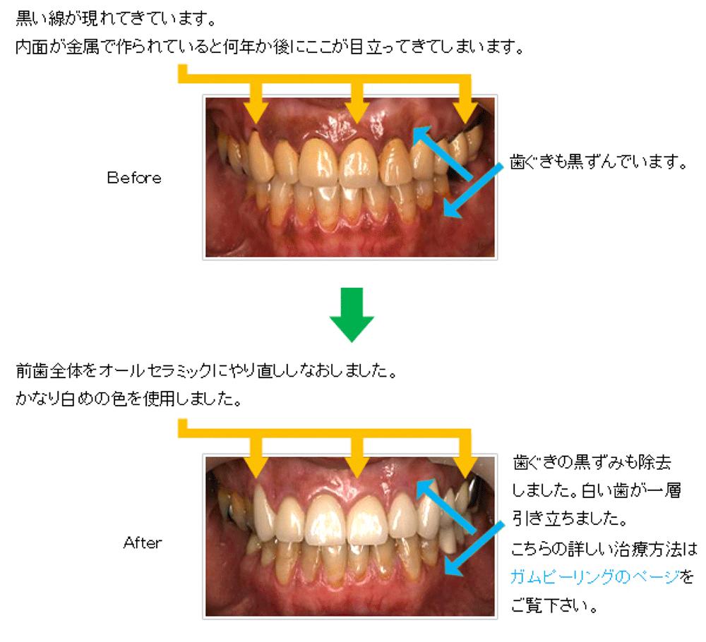 40歳代女性 上顎前歯全体をオールセラミックにやり直し、歯ぐきの黒ずみも除去したケース
