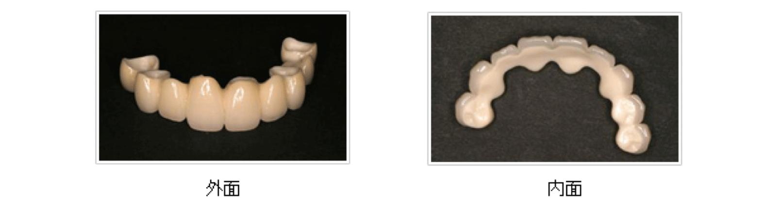 上顎前歯のロングブリッジ