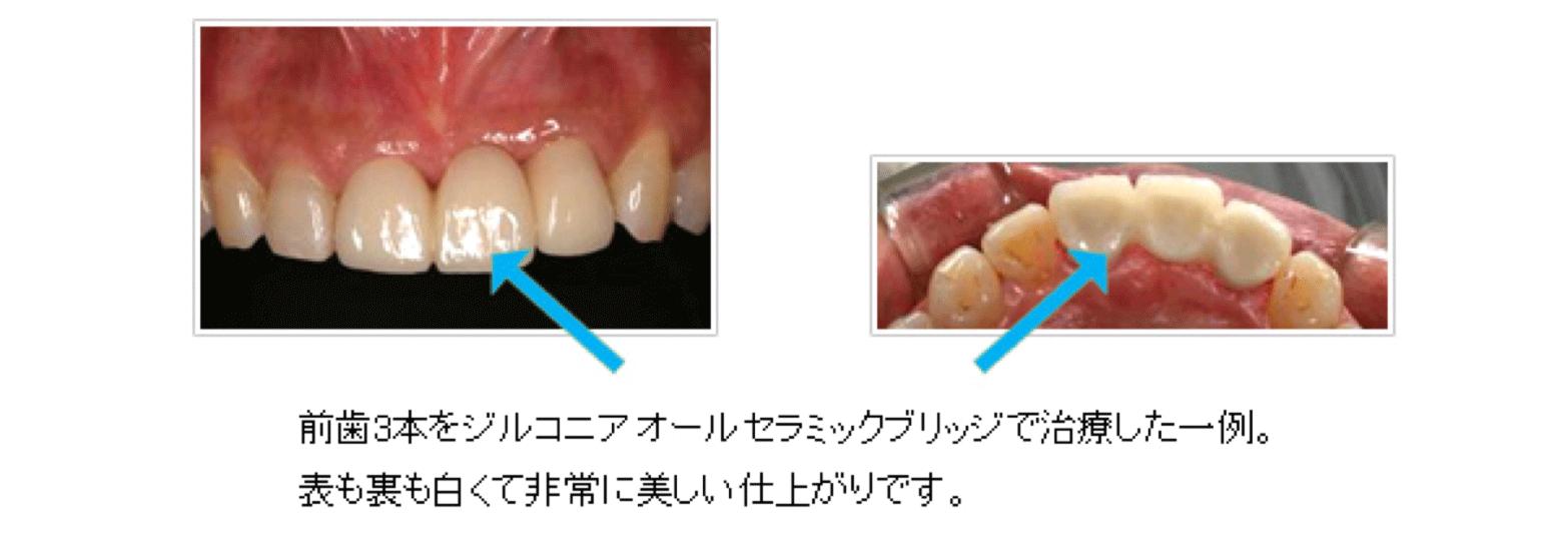 下顎前歯のロングブリッジ