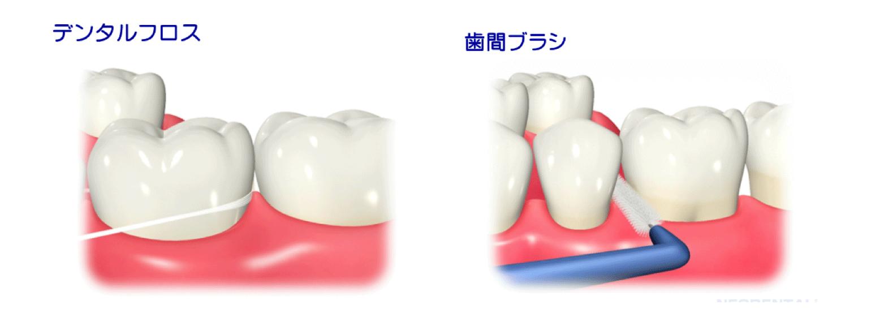 歯間部清掃