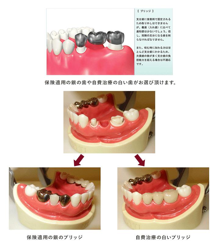 歯が欠損した場合に前後の歯を削ってつなげる方法です